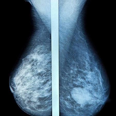 gør brystkræft ondt