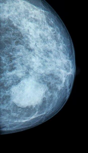 Mammografi eller screening for brystkræft hvert andet år for kvinder 50-69 år