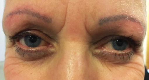 Kemoterapi kan føre til permanent hårtab og til at øjenbryn skal tatoveres på